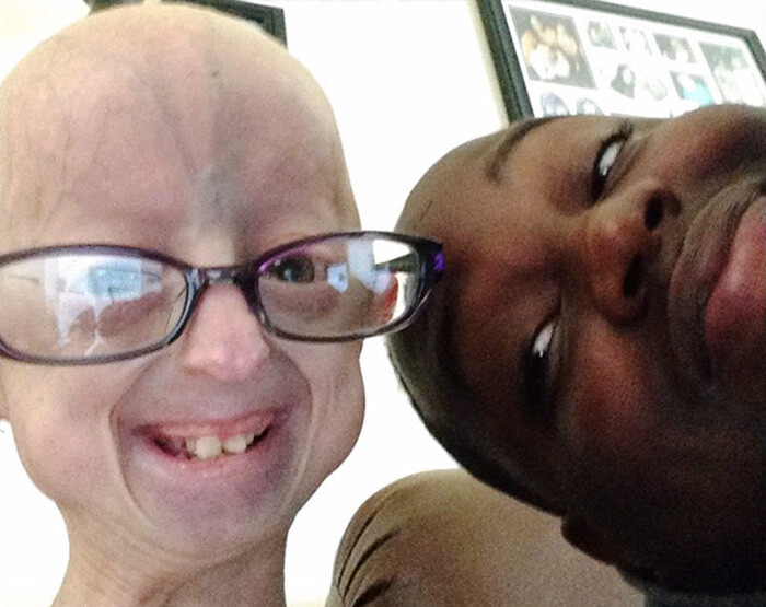 girl-rare-disease-progeria-powerlifter-friendship-lindsay-ratcliffe-david-douglas-21-1