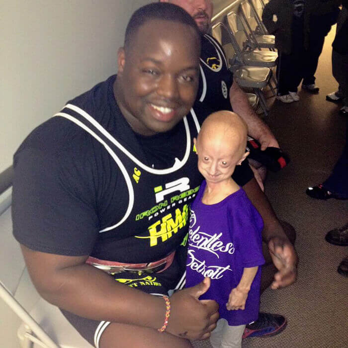 girl-rare-disease-progeria-powerlifter-friendship-lindsay-ratcliffe-david-douglas-4-1-1-1
